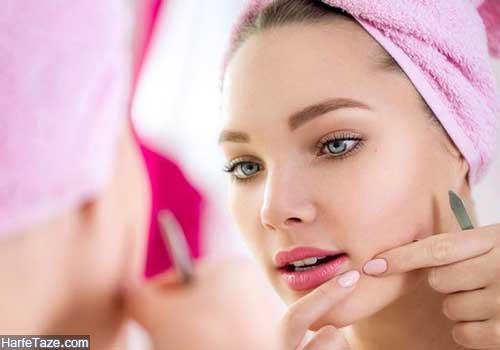 بهترین روش برای جلوگیری از جوش زدن صورت