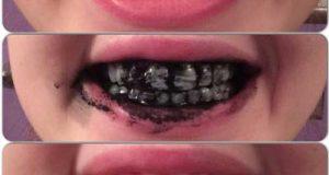 ساده ترین و سریعترین راههای سفید کردن دندان به روش خانگی