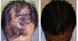 انواع روشهای کاشت مو و هزینه های آن