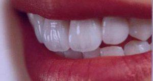 تعبیر دیدن دندان در خواب