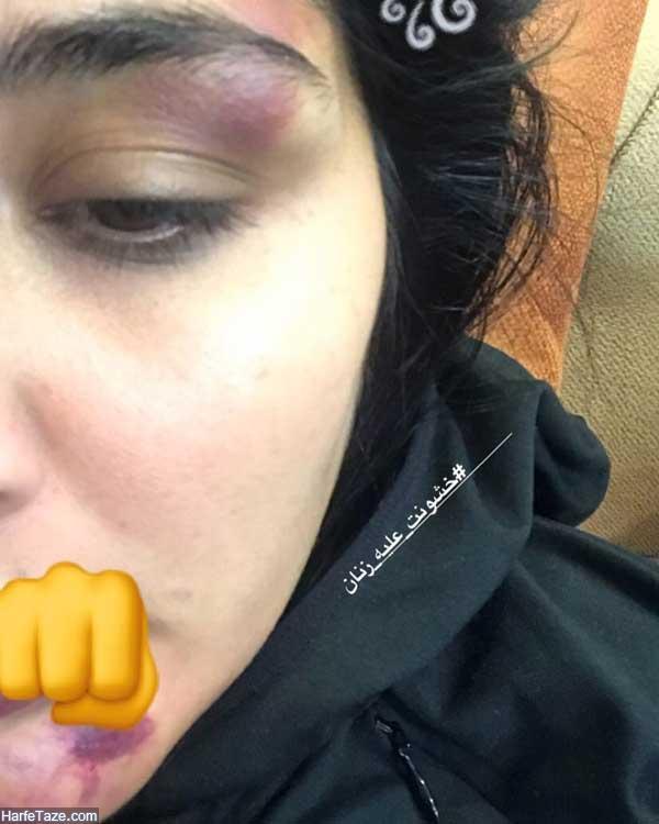 کتک خوردن مریم معصومی