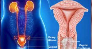 ترشحات پنیری واژن در زنان چیست و راههای درمان آن