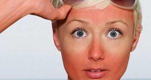 نسخه درمان طبیعی و خانگی آفتاب سوختگی و مراقبت بعد از آفتاب سوختگی