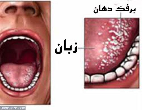 درمان خانگی برفک دهان