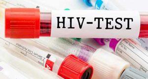 آزمایش ایدز در بارداری | تشخیص رایگان و محرمانه ایدز