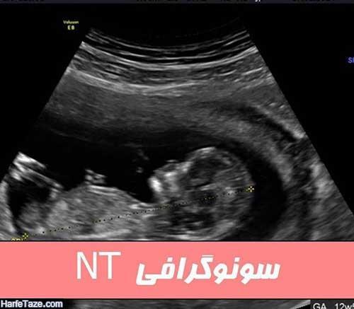 سونوگرافی NT