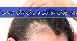 علایم ریزش مو ارثی و روش های درمانی آن