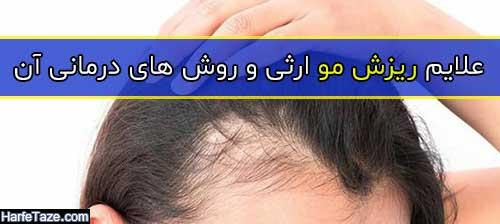 علایم ریزش مو ارثی