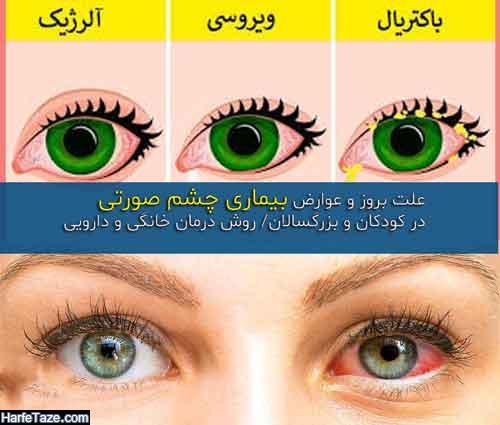 بیماری چشم صورتی چیست؟ + روش پیشگیری و درمان خانگی و دارویی