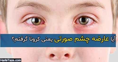 آیا عارضه چشم صورتی یعنی کرونا گرفتم ؟