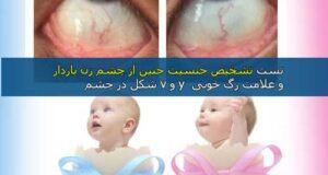 علامت v یا Y در چشم زن باردار چیست