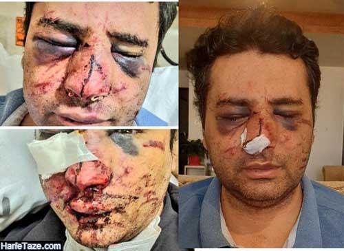 عکس و فیلم بازداشت ضاربان دکتر محمد ابوترابی متخصص بیهوشی در پیرانشهر