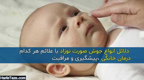 انواع جوش صورت نوزاد و دلائل و علائم هر کدام + درمان خانگی و پیشگیری