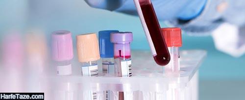 تفسیر روان TG در آزمایش خون