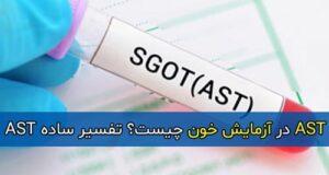 AST در آزمایش خون چیست؟ تفسیر ساده AST