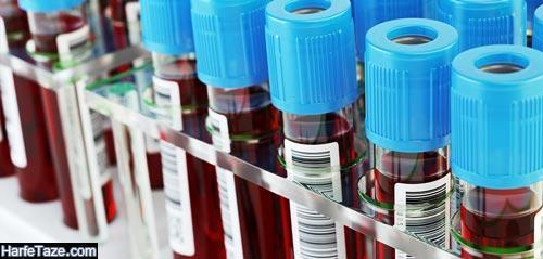 تفسیر AST در آزمایش خون