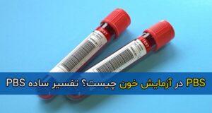 PBS در آزمایش خون چیست؟ تفسیر ساده PBS