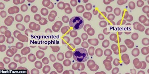 تفسیر PBS در آزمایش خون
