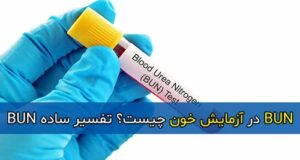 BUN در آزمایش خون چیست؟ تفسیر ساده BUN