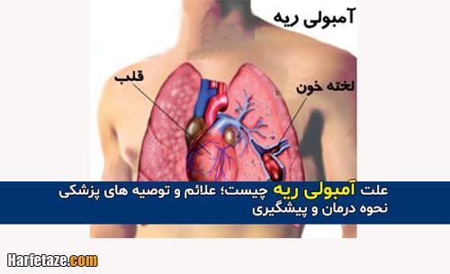 علت آمبولی ریه چیست؛ علائم و توصیه های پزشکی +روش درمان و پیشگیری