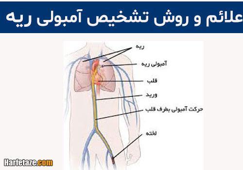عوارض آمبولی ریه