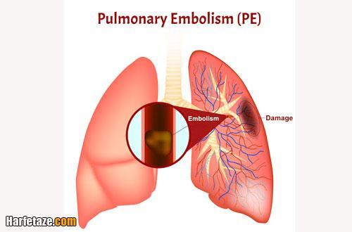 منظور از آمبولی ریه چیست؟
