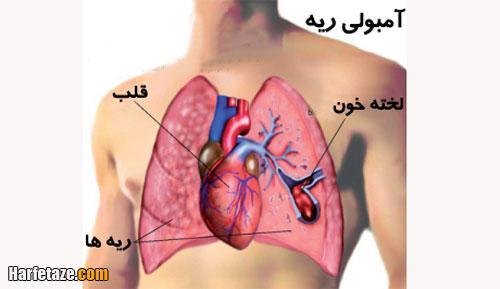 نحوه تشخیص امبولی ریوی و عکس امبولی ریوی در نوار قلب