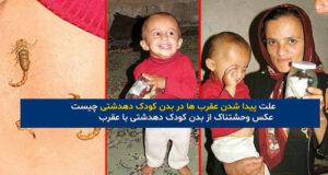 علت پیدا شدن عقرب ها در بدن کودک دهدشتی چیست