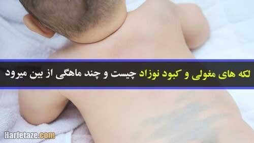 مهمترین علل لکه های کبود مادرزادی و لکه های مغولی نوزاد + زمان رفع و روش درمان