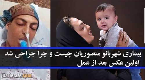 بیماری شهربانو منصوریان چیست و چرا جراحی شد + اولین عکس بعد از عمل