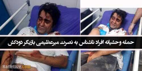 تصاویر/ حمله دلخراش افراد ناشناس به نصرت میرعظیمی بازیگر دودکش و امیر دشتی +علت