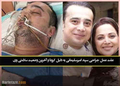 علت عمل جراحی سپند امیرسلیمانی به دلیل کرونا و آخرین وضعیت سلامتی وی