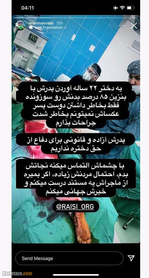 ماجرای سوختگی و فوت دختر 22 ساله کردستانی + آتش زدن دختر 22 ساله توسط پدرش؟!